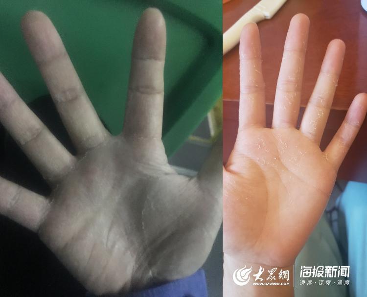 【频繁洗手、消杀,年轻医护的手总是脱皮,图为队员常超和张文文的手】