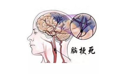 """70岁大姨头晕不适,潍坊市中医院专家动脉取栓点亮生命的""""缺血半暗带"""""""
